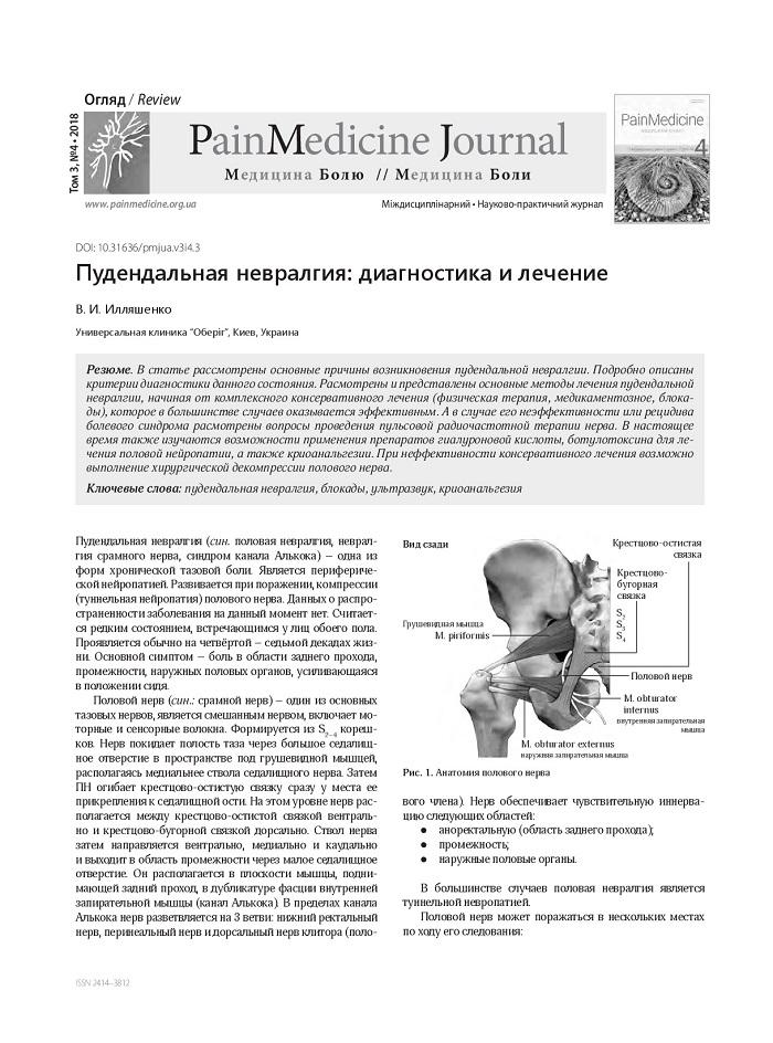 Пудендальная невралгия: диагностика и лечение