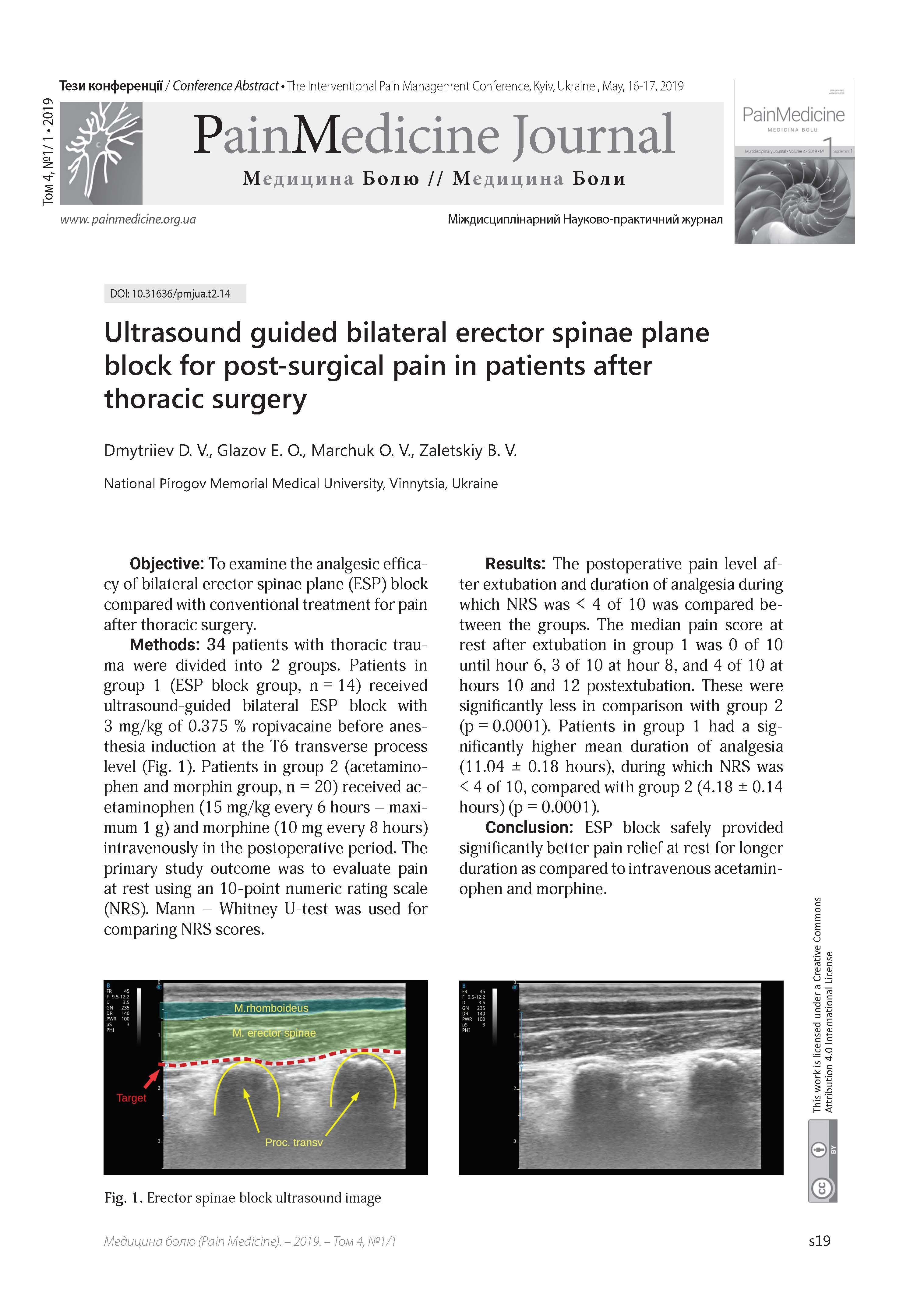 Ultrasound guided bilateral erector spinae plane block for post-surgical pain in patients after thoracic surgery